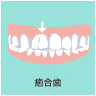 子供 歯並び