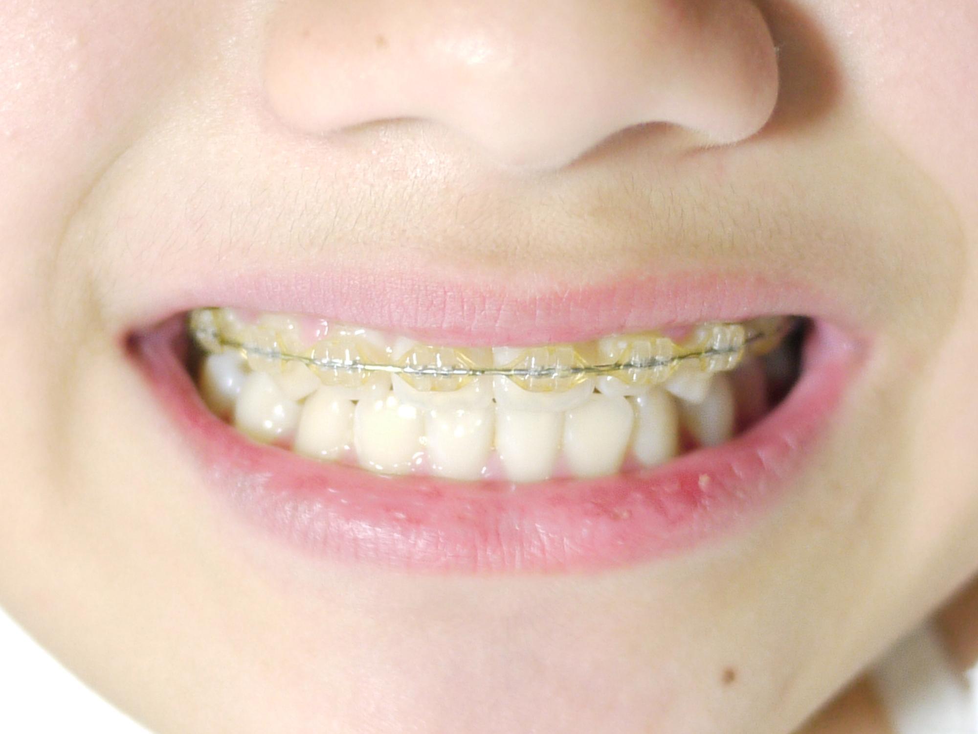 小児歯科 保険適用 基準
