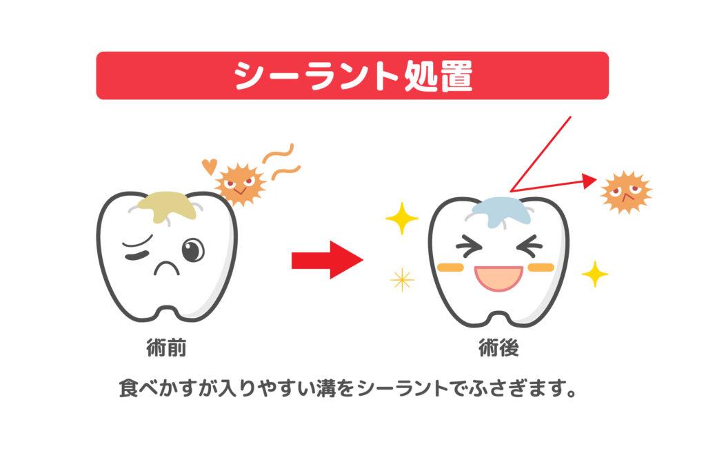 シーラント処置の効果のイメージイラスト